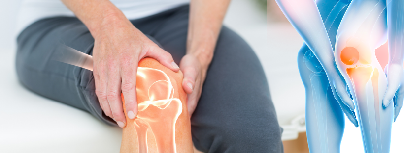 Tips to Take Care of Your New Knee Joint