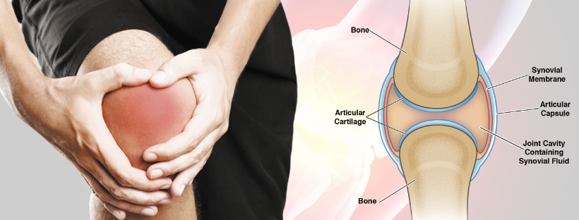 Knee Arthritis- The Major Reason for Knee Replacement Surgery